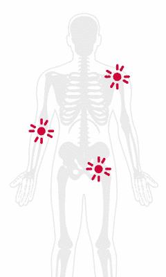 Degenerative Joint Diseaste Pain Treatment